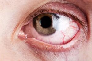 Stress symptomen ogen