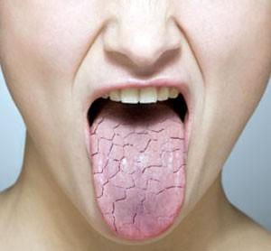 droge tong