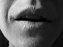 altijd uitgedroogde mond
